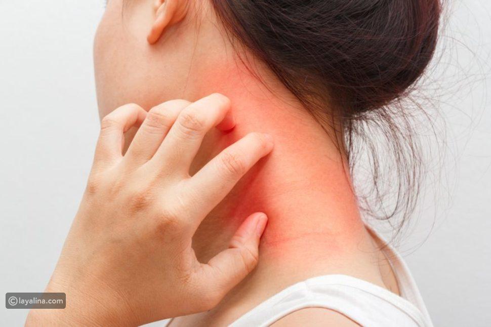 الأكزيما الدهنية:أسبابها وأعراض ظهورها